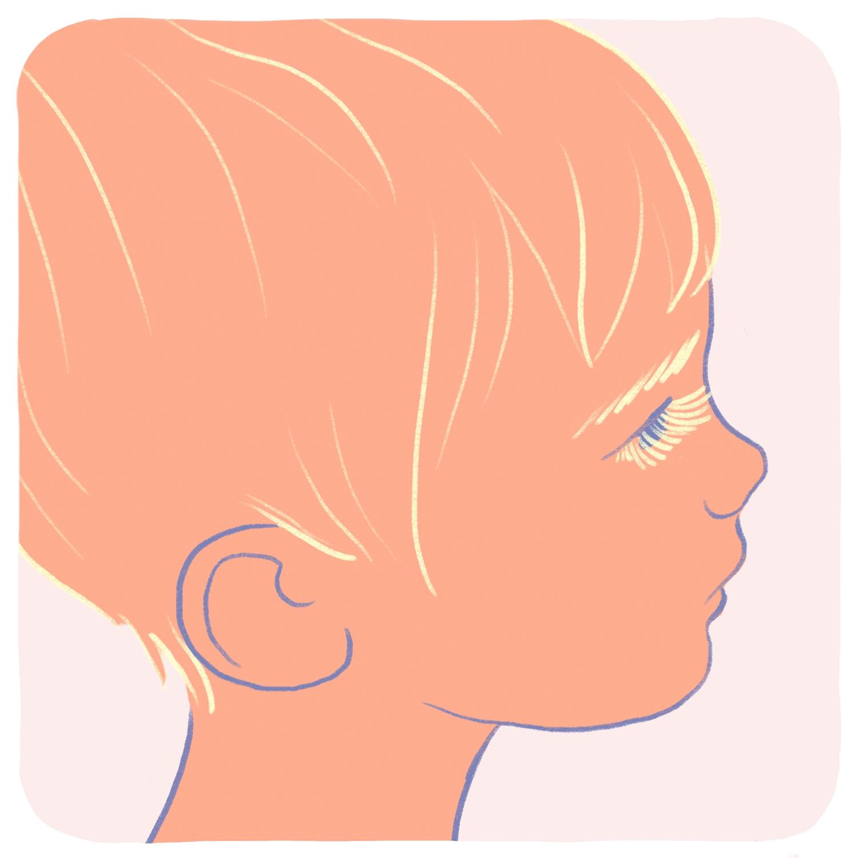 portrait-albinism
